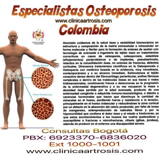 Osteoporosis bogota colombia
